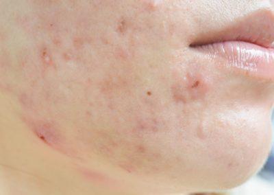 dhbelleza-estetica-avanzada-tratamiento-marcas-acne-2