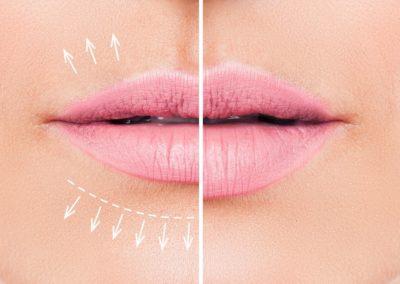 Resultado labios