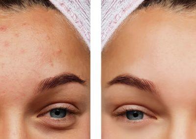 Resultados tratamiento acné