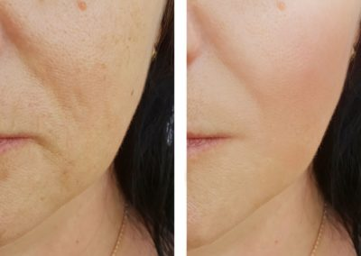 Resultados Flacidez facial