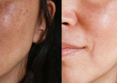 Resultados Manchas Faciales
